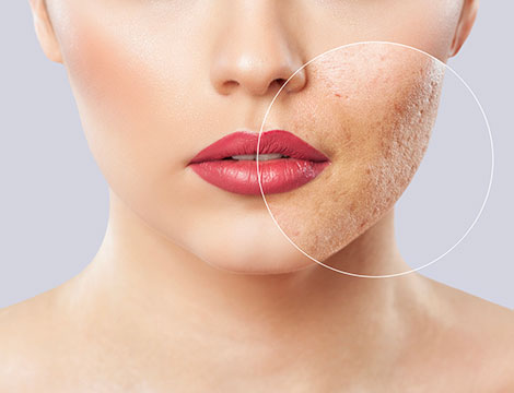 trattamenti per cicatrici da acne e smagliature
