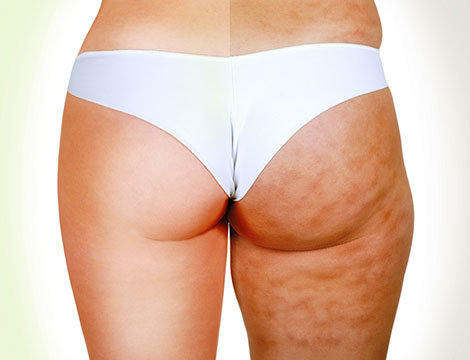 massaggi snellenti anti cellulite_N