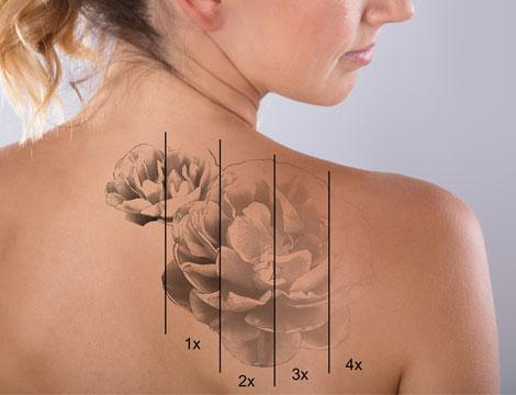3 o 5 sedute rimozione tatuaggio