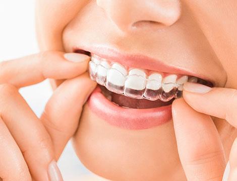Allineatore dentale invisibile Torino