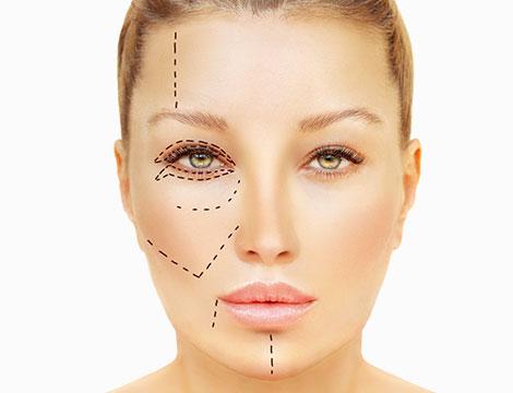 Botox o filler con acido ialuronico
