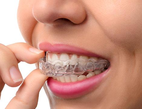 buono sconto 8 allineatori dentali invisibili