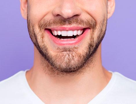 conservativa denti