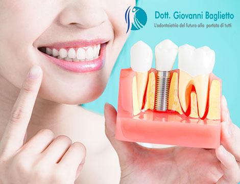 Fino a 4 impianti dentali completi_N