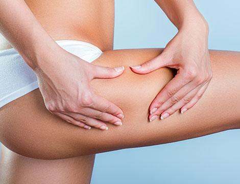 Massaggi anticellulite e cavitazioni