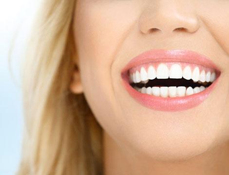 Visita con pulizia dei denti, smacchiamento, otturazione e sbiancamento