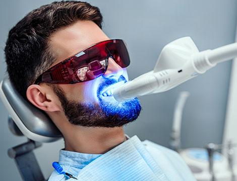 Pulizia dentale con sbiancamento led