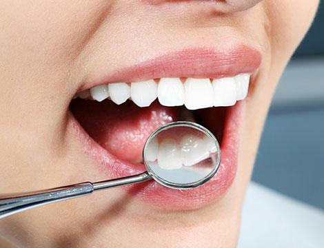 Pulizia denti Cornelia
