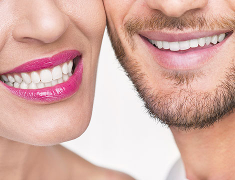 pulizia denti e sbaincamento led Health clinic_N