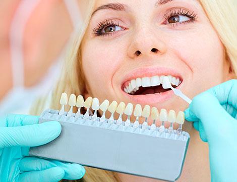 Riparazione protesi dentale