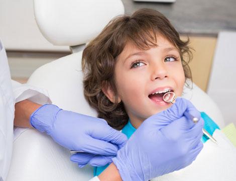 Sigillatura denti definitivi per bambini