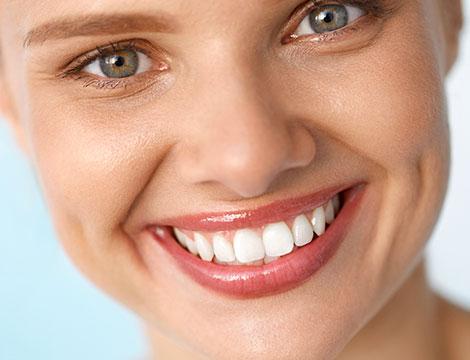 Smacchiamento dentale laser