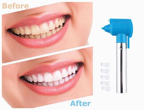 Denti perfetti con Luma smile
