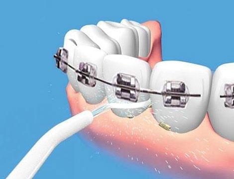 Idropulsore dentale